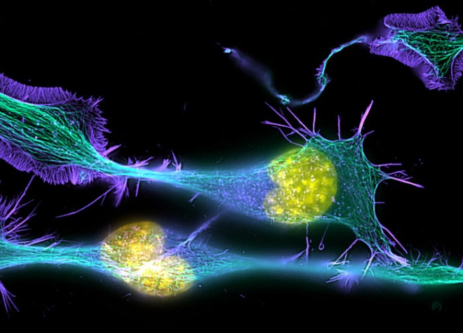 Differentiating neuronal cells